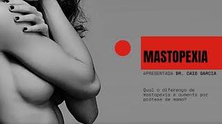 Mastopexia -  Qual a diferença de mastopexia e aumento por prótese de mama?