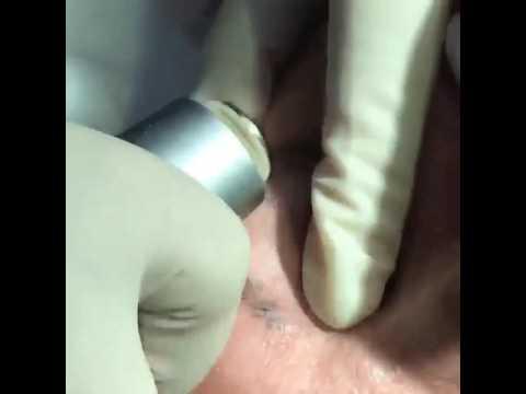 Механическая дермабразия. Клиника Аляева