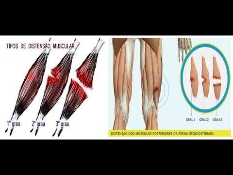 Um como panturrilha na tratar distendido músculo