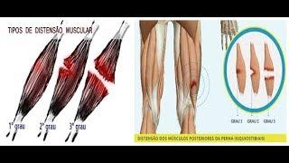 Na panturrilha tratar um como músculo distendido