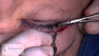 Repeat youtube video Watch Upper and Lower Blepharoplasty with Surgical Adjuncts | Dr. Guy Massry