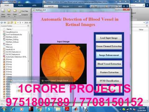 Automatic Detection Of Blood Vessel In Retinal Images