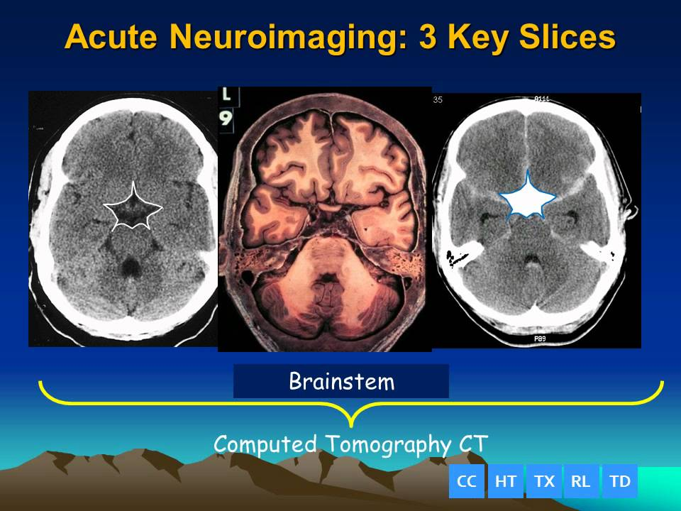 Acute Brain Imaging - The 3 Slice Method - YouTube