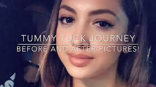 Tummy Tuck Journey *Before & After pics*