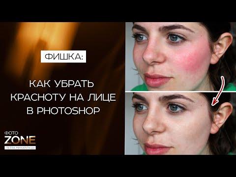 Как убрать красноту на лице в Photoshop. Убираем красные пятна с лица в фотошопе / Петр Михайлуца
