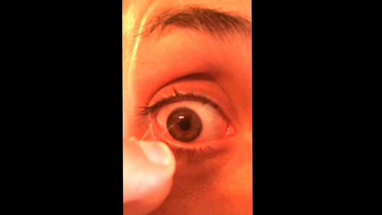 Fishing eye syndrome. Eye Worm - YouTube