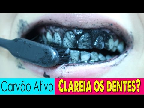 Carvao Ativo Clareia Mesmo Os Dentes Youtube