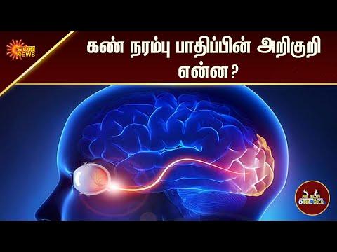கண் நரம்பு பாதிப்பின் அறிகுறி என்ன? | 5Min | Tamil Interview | Tamil News | Sun News