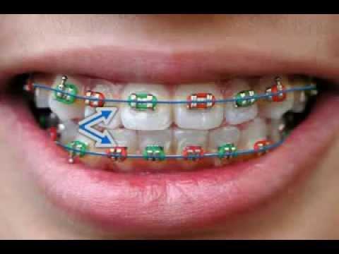 Dental Banding - Orthodontics