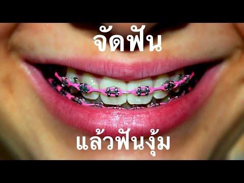 จัดฟันงุ้ม