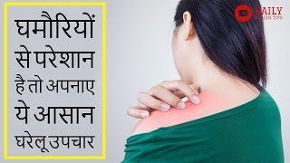 5 मिनट में घमौरियों से छुटकारा | घमौरी का घरेलू उपचार | Home Remedies for Prickly Heat in Hindi