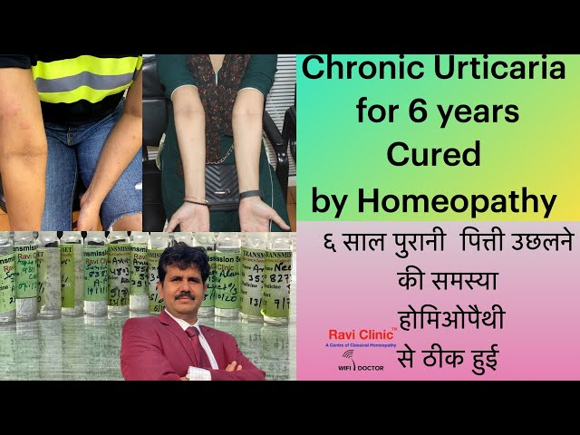 Chronic Urticaria for 6 Year Cured by Homeopathy Dr Ravi Singh