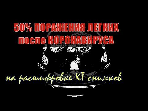50% ПОРАЖЕНИЯ ЛЕГКИХ
