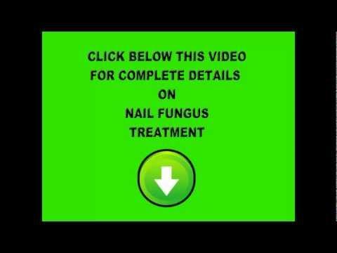 nail-fungus-laser-treatment-|-nail-fungus-treatment-|-laser-treatment-for-nail-fungus-|-otc-|-easy