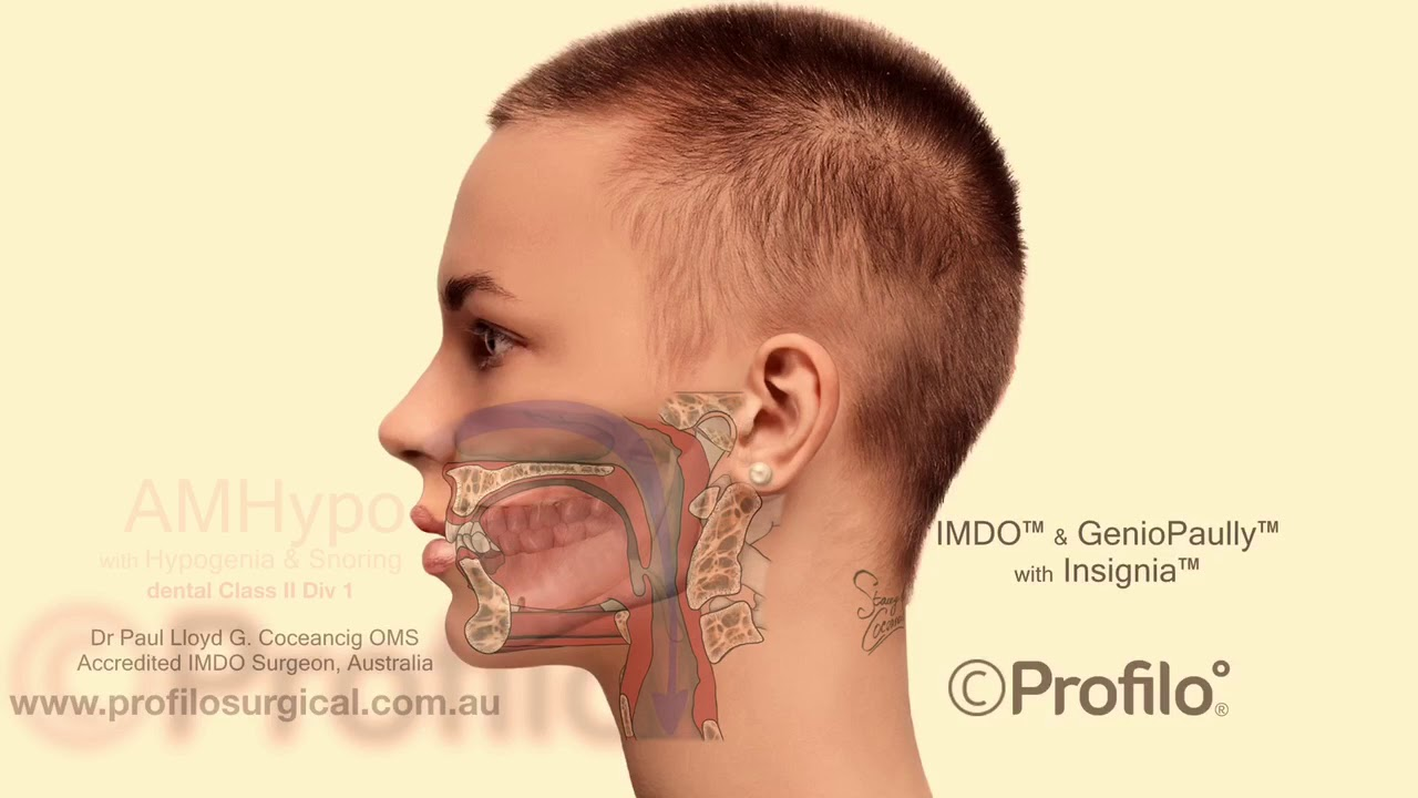 IMDO Protocol Explained For The Short Jaw And Overbite