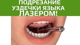 Хирургическая стоматология. Подрезание уздечки языка и губы