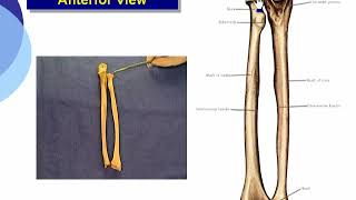 1 Features  (Summary for Radius & Ulna)