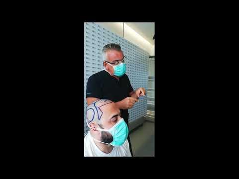 Dr. Alp Bayramoğlu Hair Follicle and Scalp Anatomy - Dr. Koray Erdoğan WFI 2019 WS Avignon-France