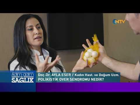 Kadınların Korkulu Rüyası: Polikistik Over Sendromu