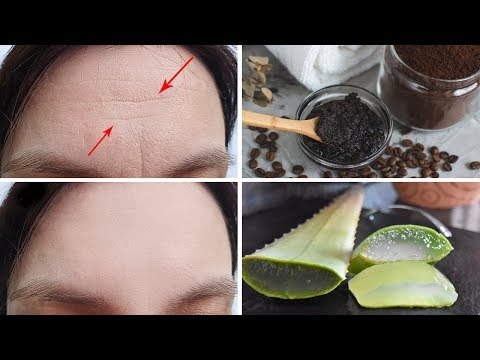 3 Effective Ways to Get Rid of Forehead Wrinkles at Home