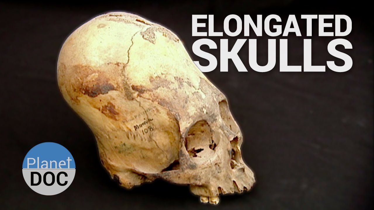 Free Car History Report >> Elongated Skulls. The Forerunners of the Inca | History ...