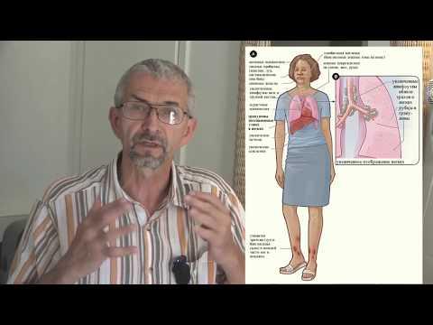 1. Беседа врача о саркоидозе для пациентов