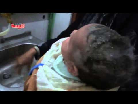 شام حمص تلبيسة طفلة مصابة جراء القصف العنيف 22 3 2014 تحذير الفيديو قاسي جداً