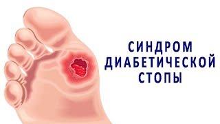 Симптомы и лечение диабетической стопы. Профилактика гангрены при сахарном диабете