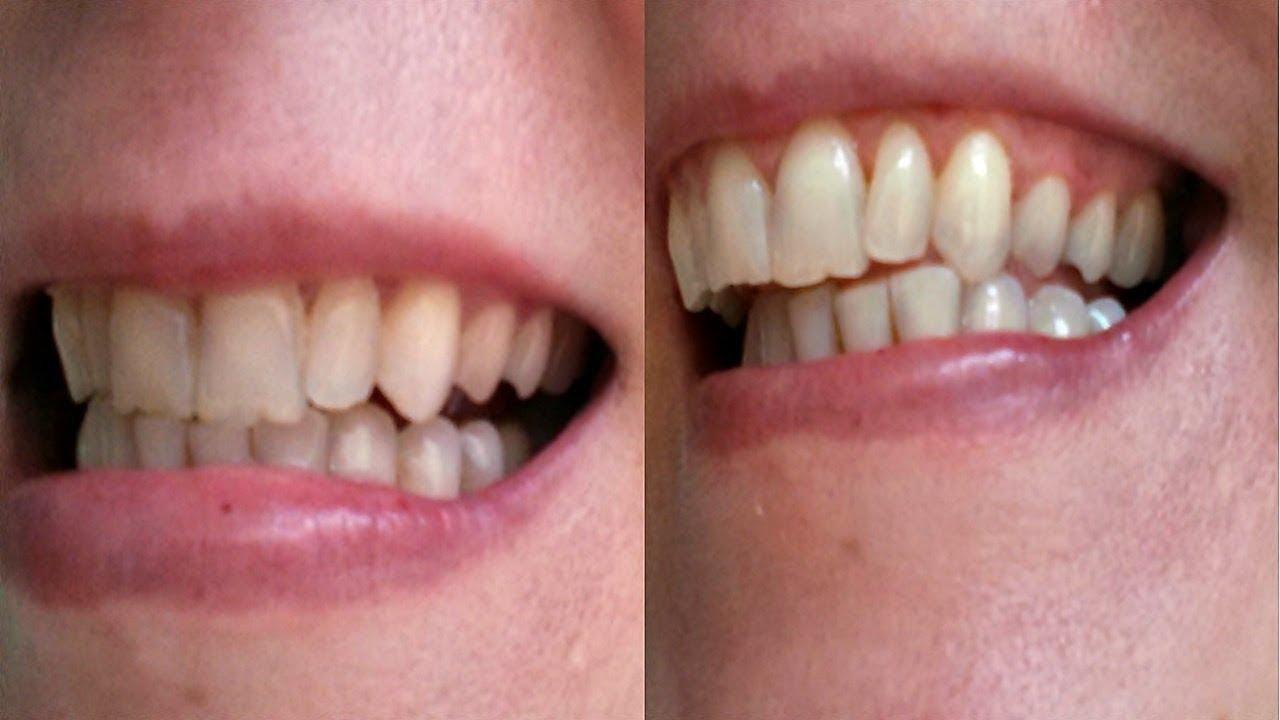 Clarear Os Dentes Com Acafrao E Com Neusa Youtube