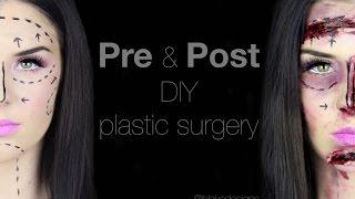 pre post diy botched plastic surgery    makeup tutorial