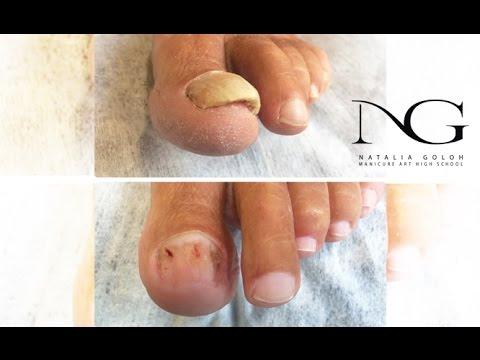 Онихомикоз: обработка ногтя. Эфир Periscope / Onychomycosis. Nail treatment