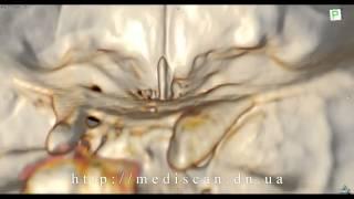 КТ головного мозга(КТ головного мозга - http://mediscan.dn.ua/kt_brain.html., 2013-11-03T12:17:34.000Z)