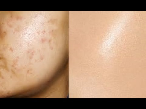 Remove Acne Marks 3 Step Natural Remedies For Pimple Marks