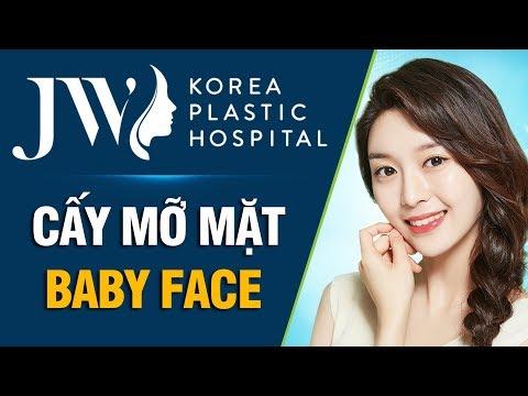 Cấy Mỡ Mặt Baby Face JW – TRẺ HÓA TOÀN DIỆN!