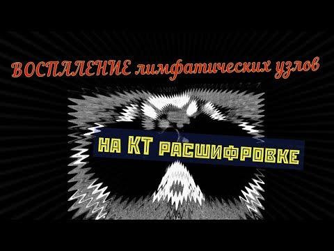 ЛИМФАДЕНИТ ШЕИ на расшифровке КТ мягких тканей шеи