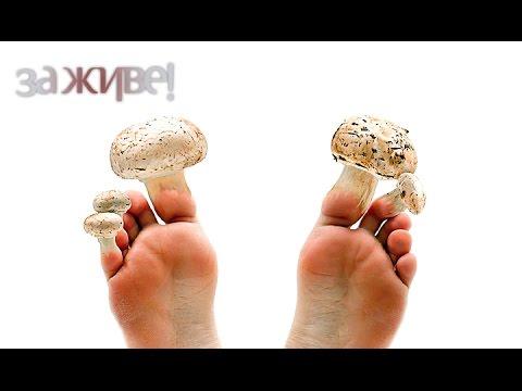 Грибок на пальцах ног: фото, лечение грибка пальцев ног