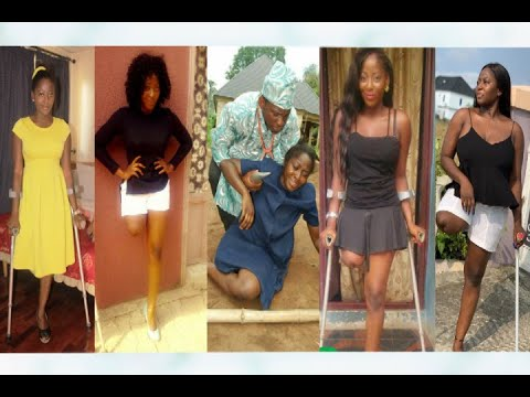 Download Meet Beautiful Nollywood Actress Who Lost One Of Her Leg
