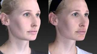 Rhinoplasty 3D Before and After-13