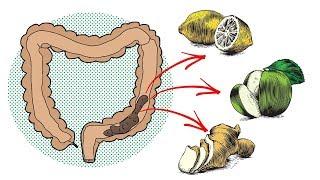 6 Hausmittel zur natürlichen Darmreinigung!