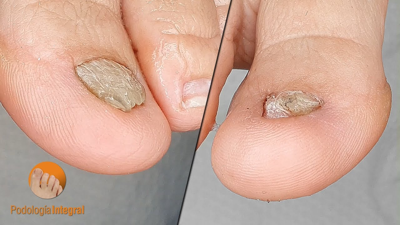 Yellow nail syndrome [2nd video]