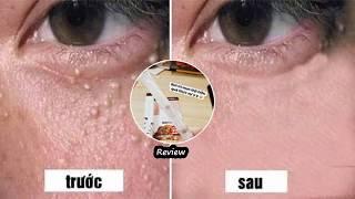 Kem trị mụn thịt tsubuporon review tốt ko? Và cách sử dụng