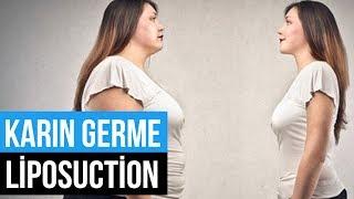 Karın Germe Ameliyatı Olmadan Liposuction ile Karın Bölgesi Şekillendirilebilir mi?