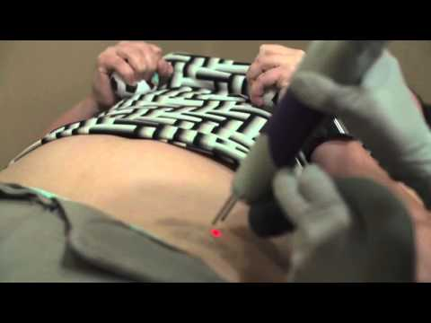 does-tattoo-removal-hurt?-san-diego-laser-tattoo-removal