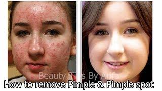 মাত্র ৭ দিনে ব্রন,ব্রন এর কালো দাগ দূর করে স্কিন ফর্সা করবে জাদুকরী এই ফেসপ্যাক||Remove Pimple spot