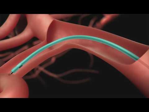 Microvascular Plug Deployment - Cath Lab