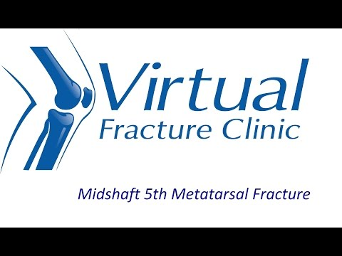 Midshaft 5th Metatarsal Fracture