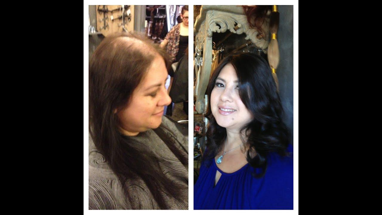 Hair Loss Natural Treatment for Women Arganrain  YouTube