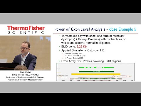 Exon Level CNV Analysis In Fetuses With Structural Anomalies