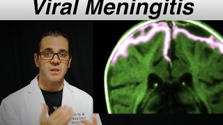 viral meningitis - Patient Education Video