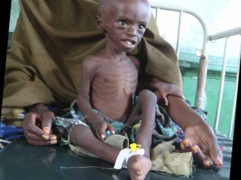 Somalia Famine Crisis